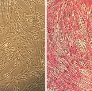 hscasmc | primary human subclavian artery smooth muscle cells, Muscles
